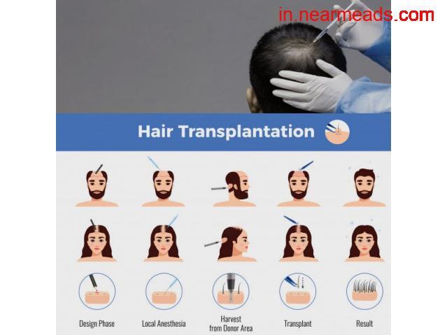 Hair Transplant for Men - 1