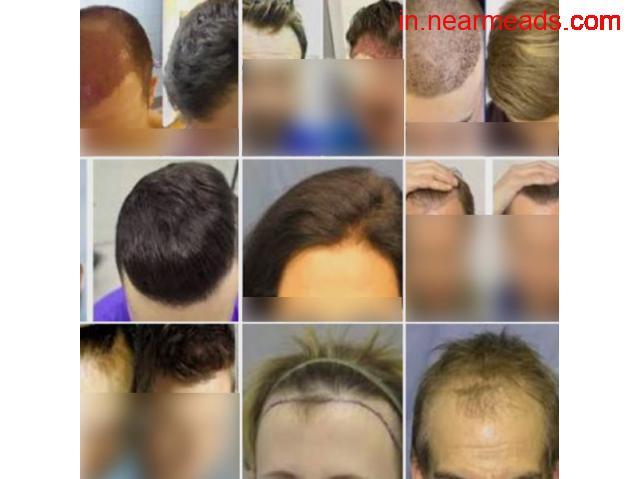 Insta Hair Treatment - 1